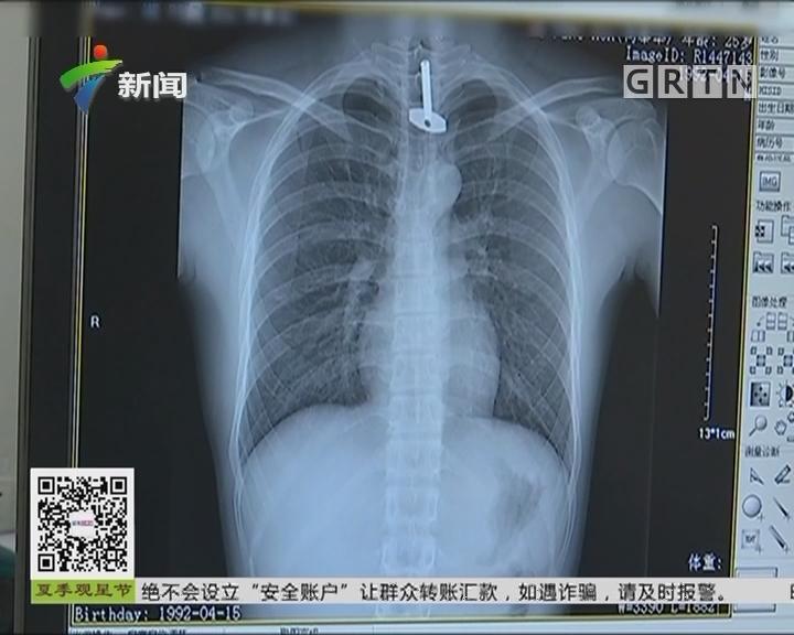 广东中山:男子吞下长5厘米钥匙 医生艰难取出