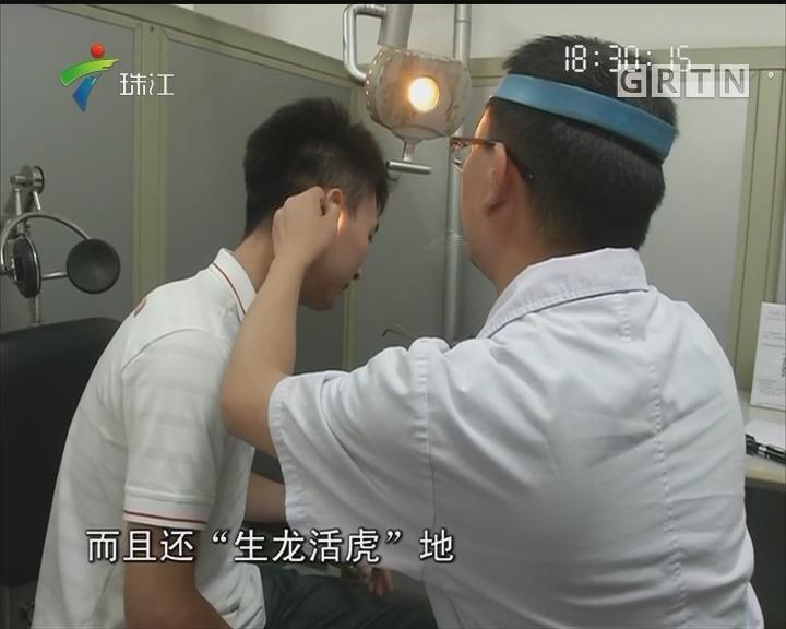 广州:男子午睡壁虎钻进耳朵
