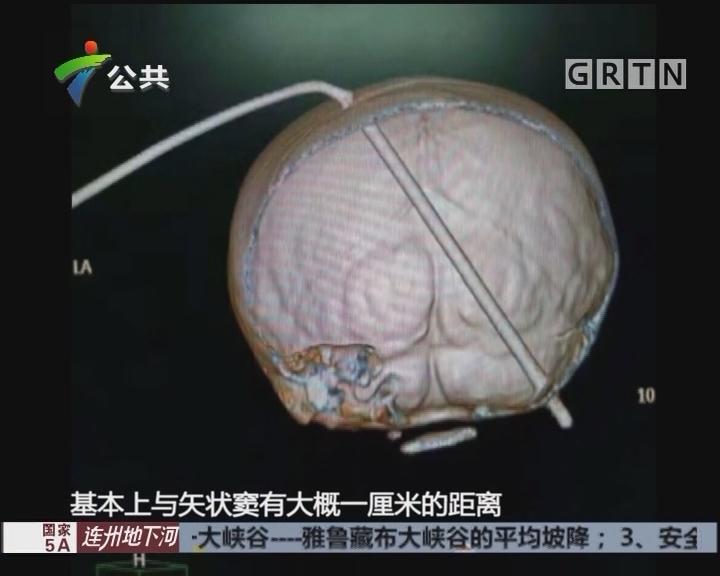 东莞:4岁男童遭遇意外 医生连夜抢救