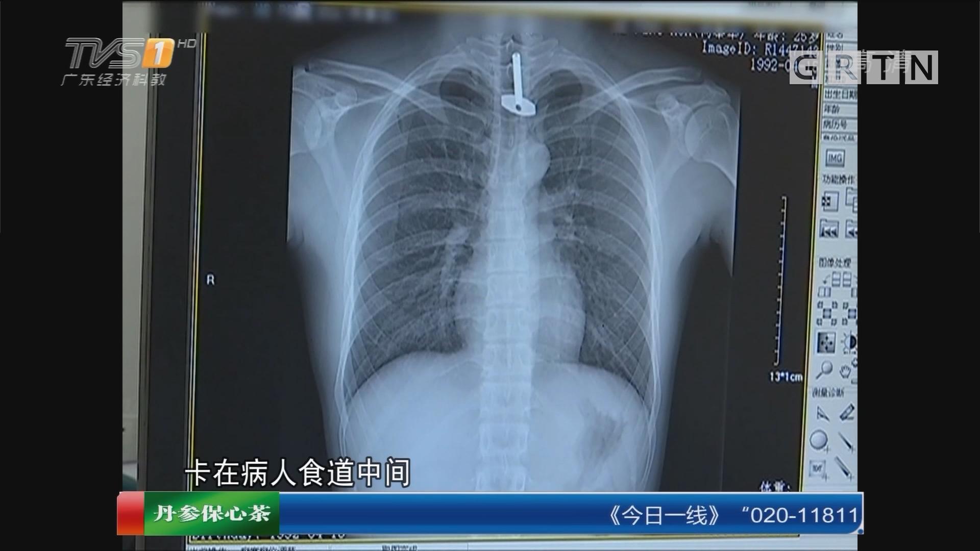 广东中山:男子吞下长5cm钥匙 医生艰难取出