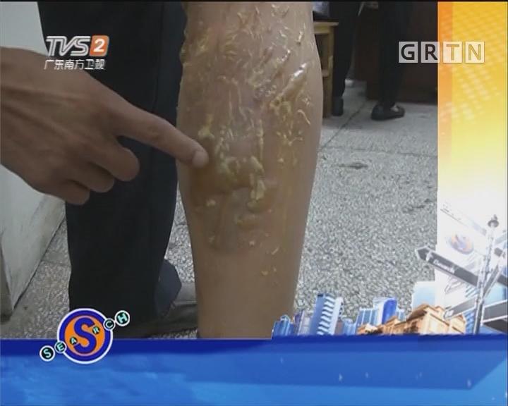 拔罐出意外 腿被烧伤