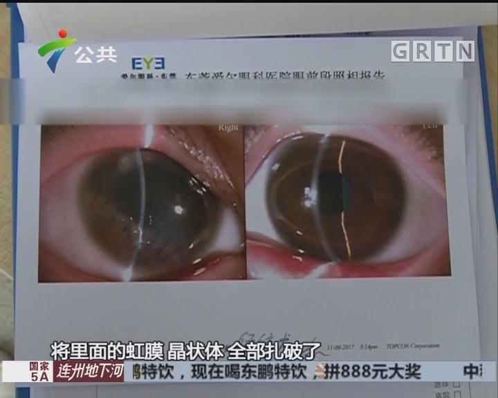 东莞:男童被剪刀刺伤 眼险失明