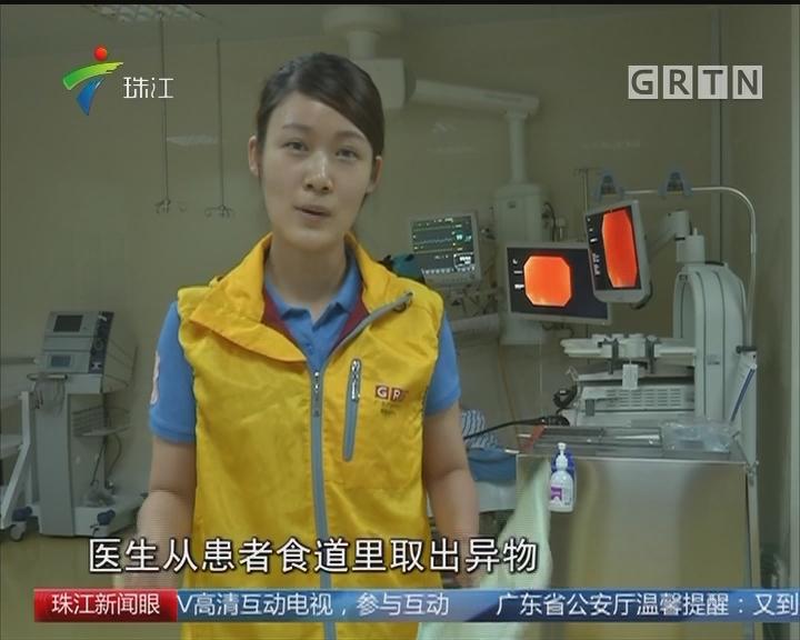 东莞:玻璃渣刺食道 医生妙手取出