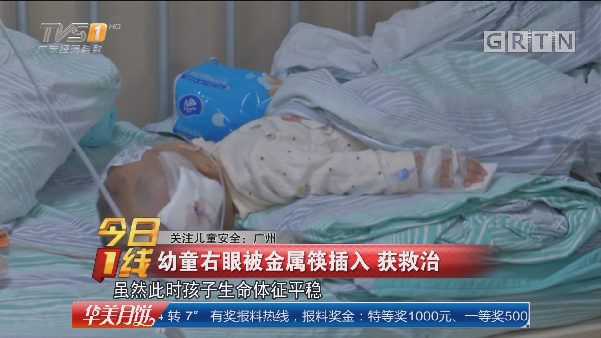 关注儿童安全:广州 幼童右眼被金属筷插入 获救治
