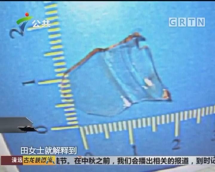 东莞:女子误吞玻璃 医生提醒进食勿急