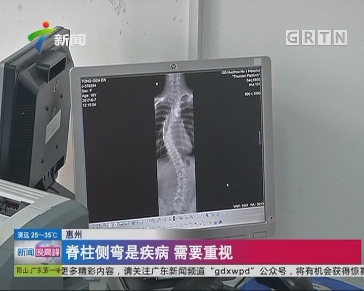 惠州:脊柱侧弯是疾病 需要重视