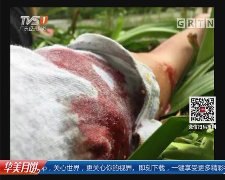 关注小区养犬安全:广州增城 住户被金毛犬咬伤 手臂缝了几十针