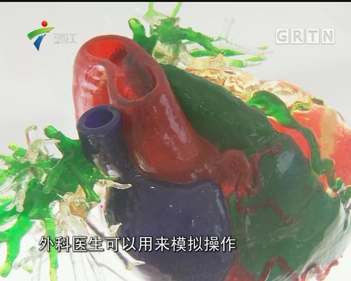"""广东:3D打印""""心脏"""" 提高手术安全性"""