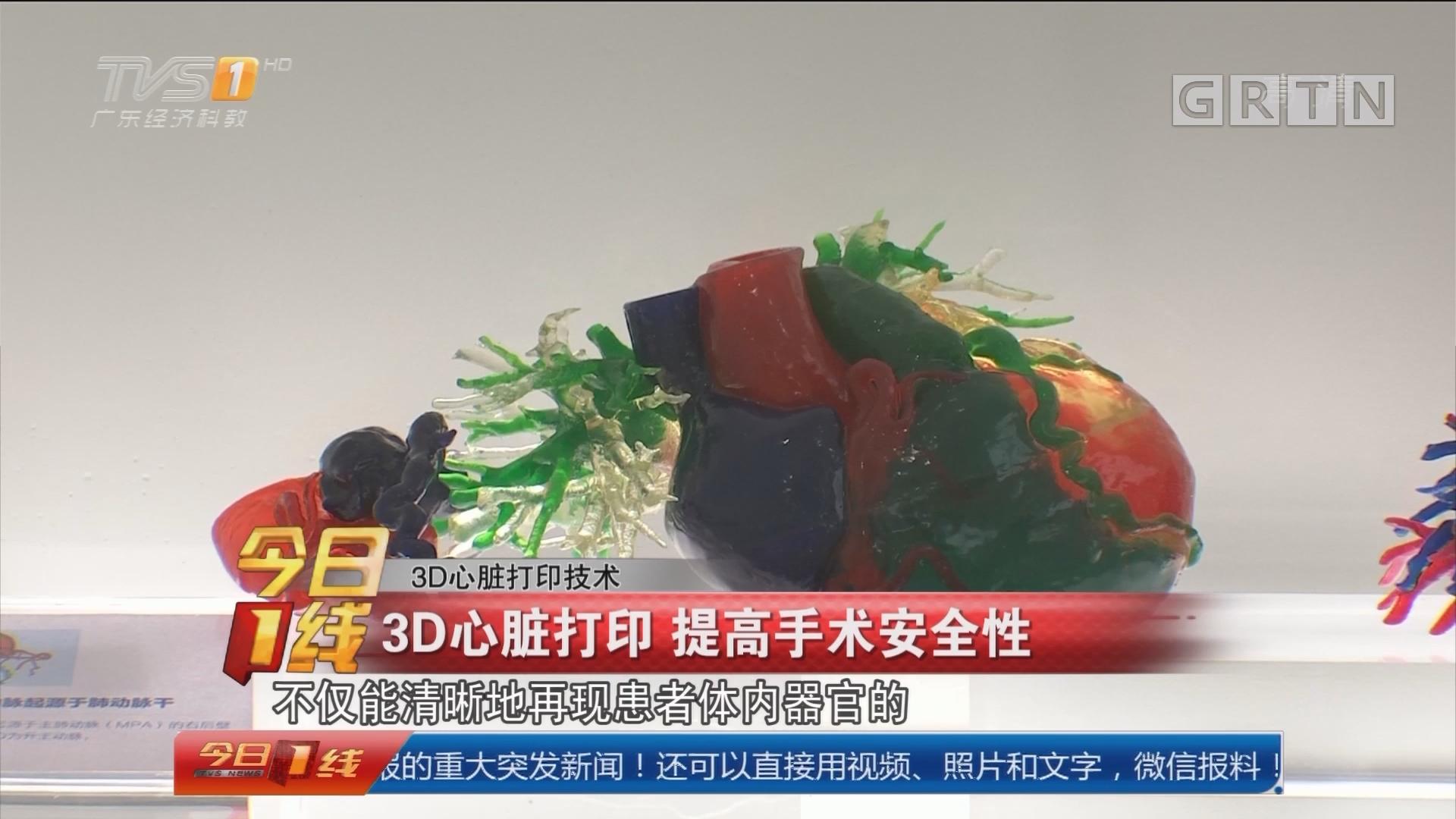 3D心脏打印技术:3D心脏打印 提高手术安全性