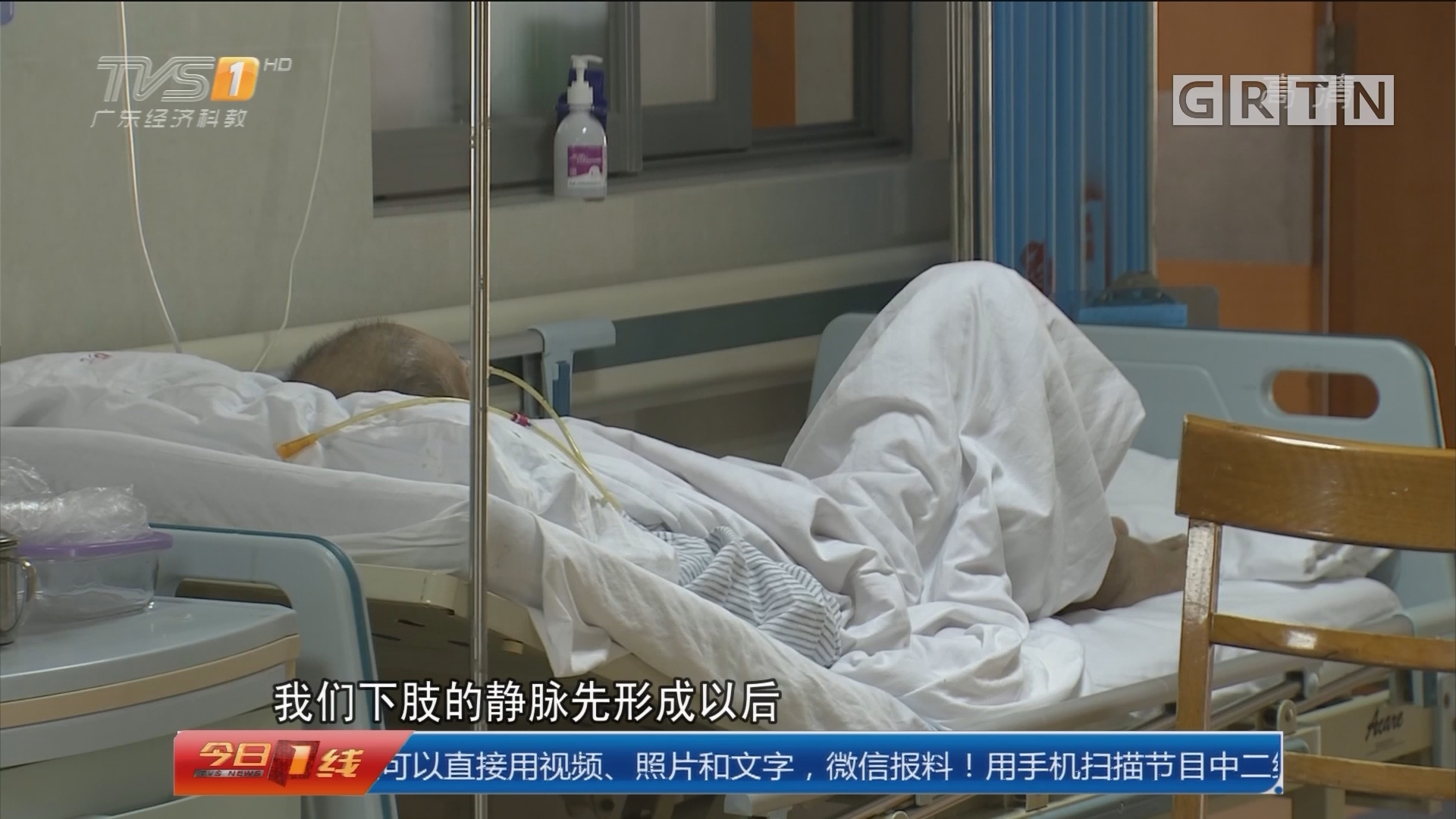 广州:男子久坐打麻将 造成血管堵塞