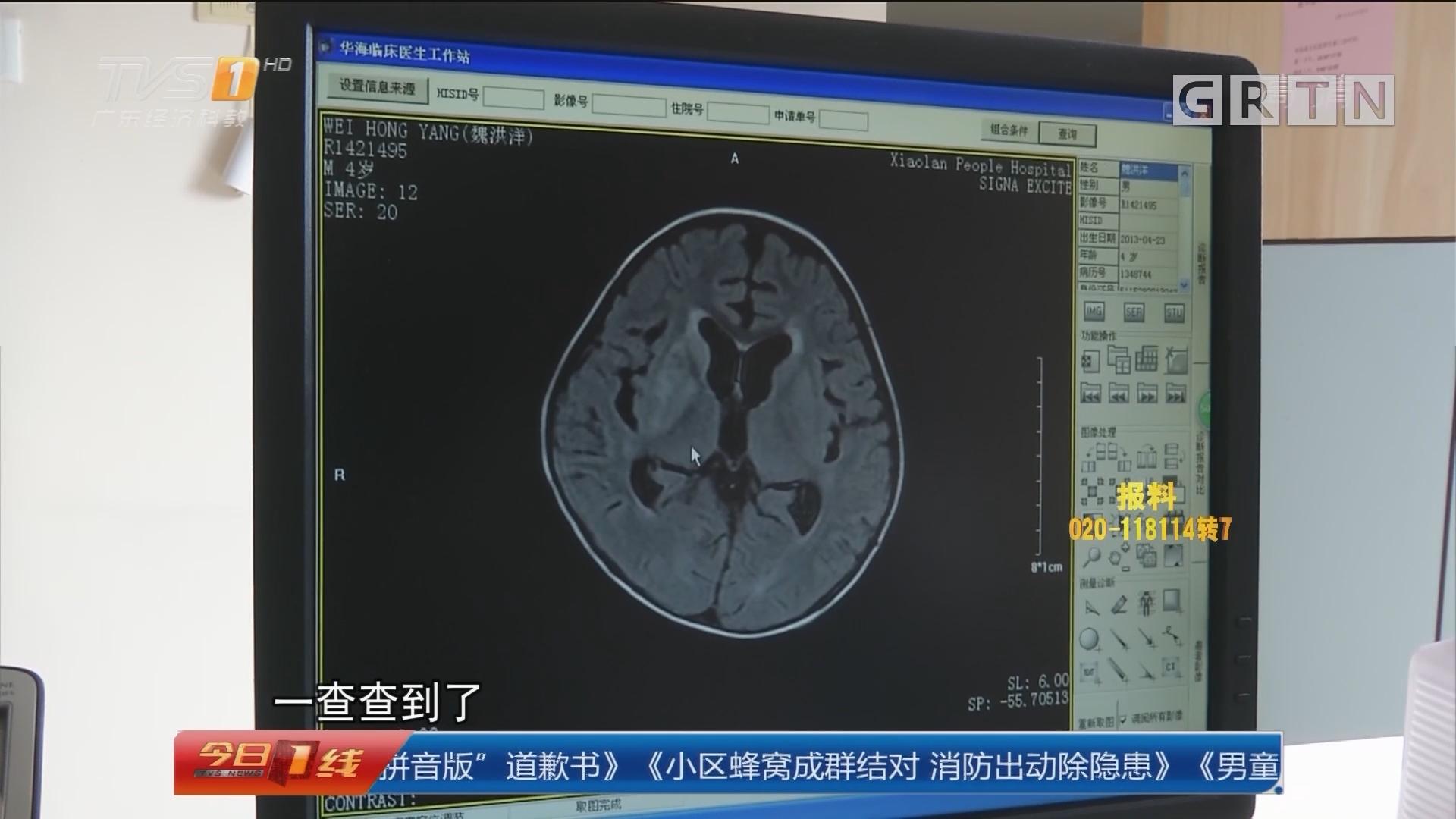 """中山小榄:男童疑患""""脑瘫"""" 一查竟是脑囊虫病"""