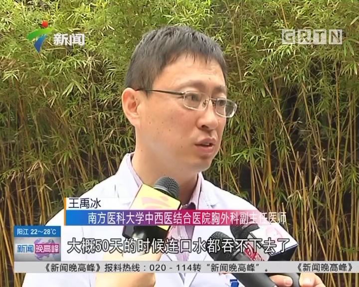广州:女子误食氢氧化钠 致食管和胃严重烧伤