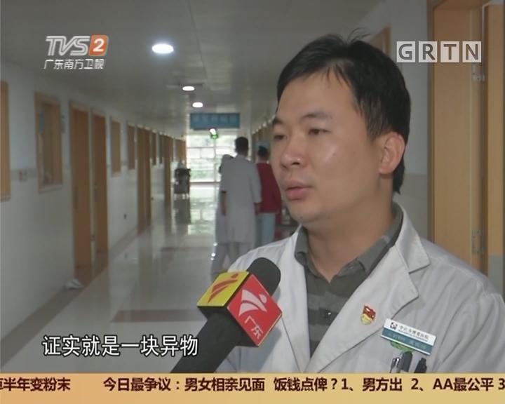 中山:幼儿肛周无故红肿 术后取出异物