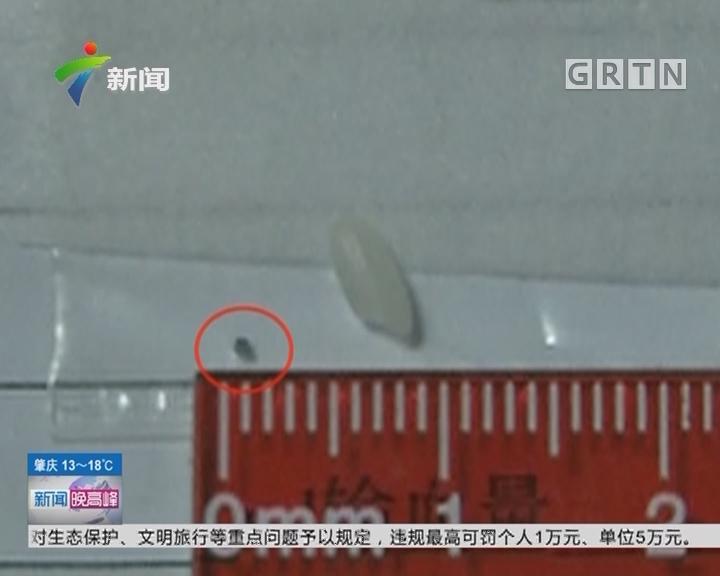 陕西:铁渣击穿眼球 手术犹如大海捞针