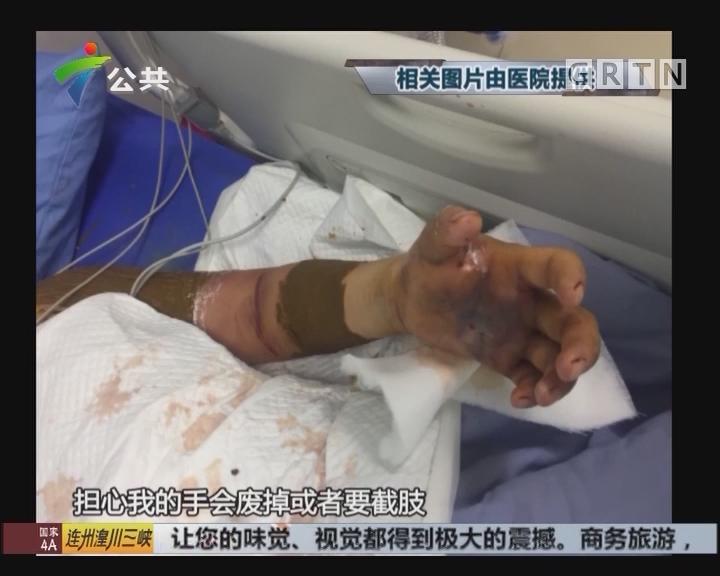 深圳:女子好奇围观宰蛇 意外被咬伤