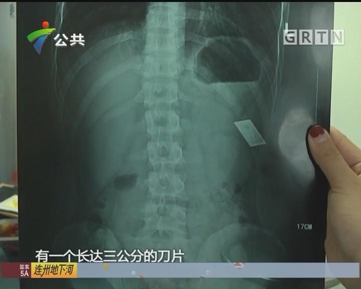 深圳:男子腹部被划伤 缝合后发现刀片残留