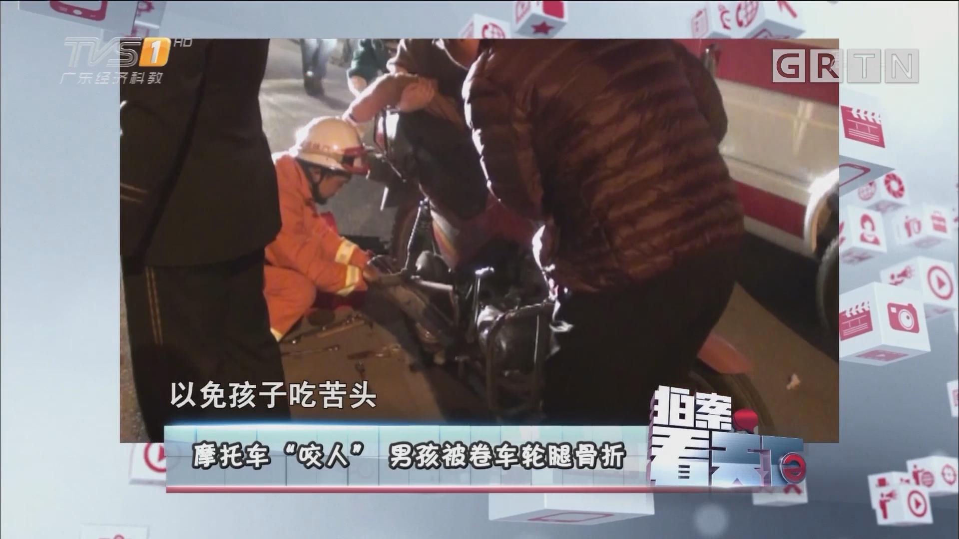 "[HD][2017-11-03]拍案看天下:摩托车""咬车""男孩被卷车轮腿骨折"