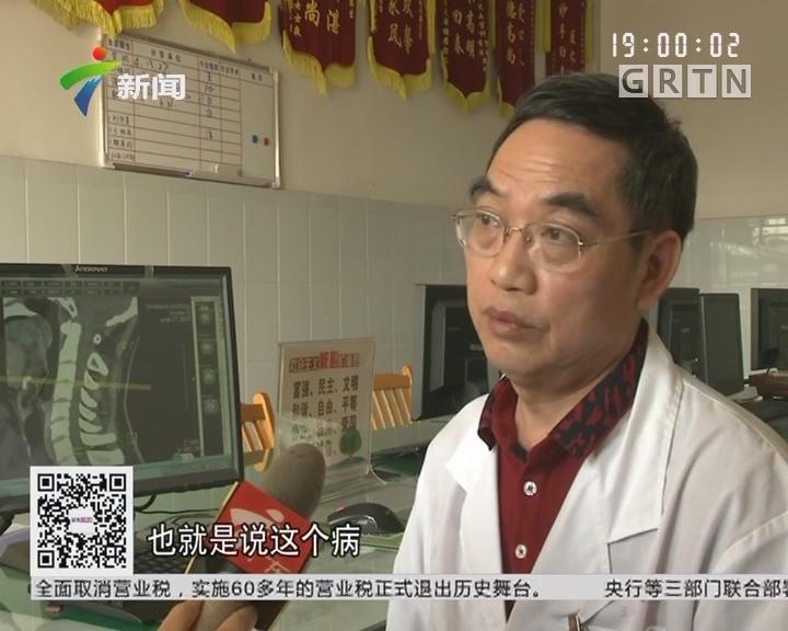 东莞:男子喉咙痛险丧命 竟是会厌脓肿所致