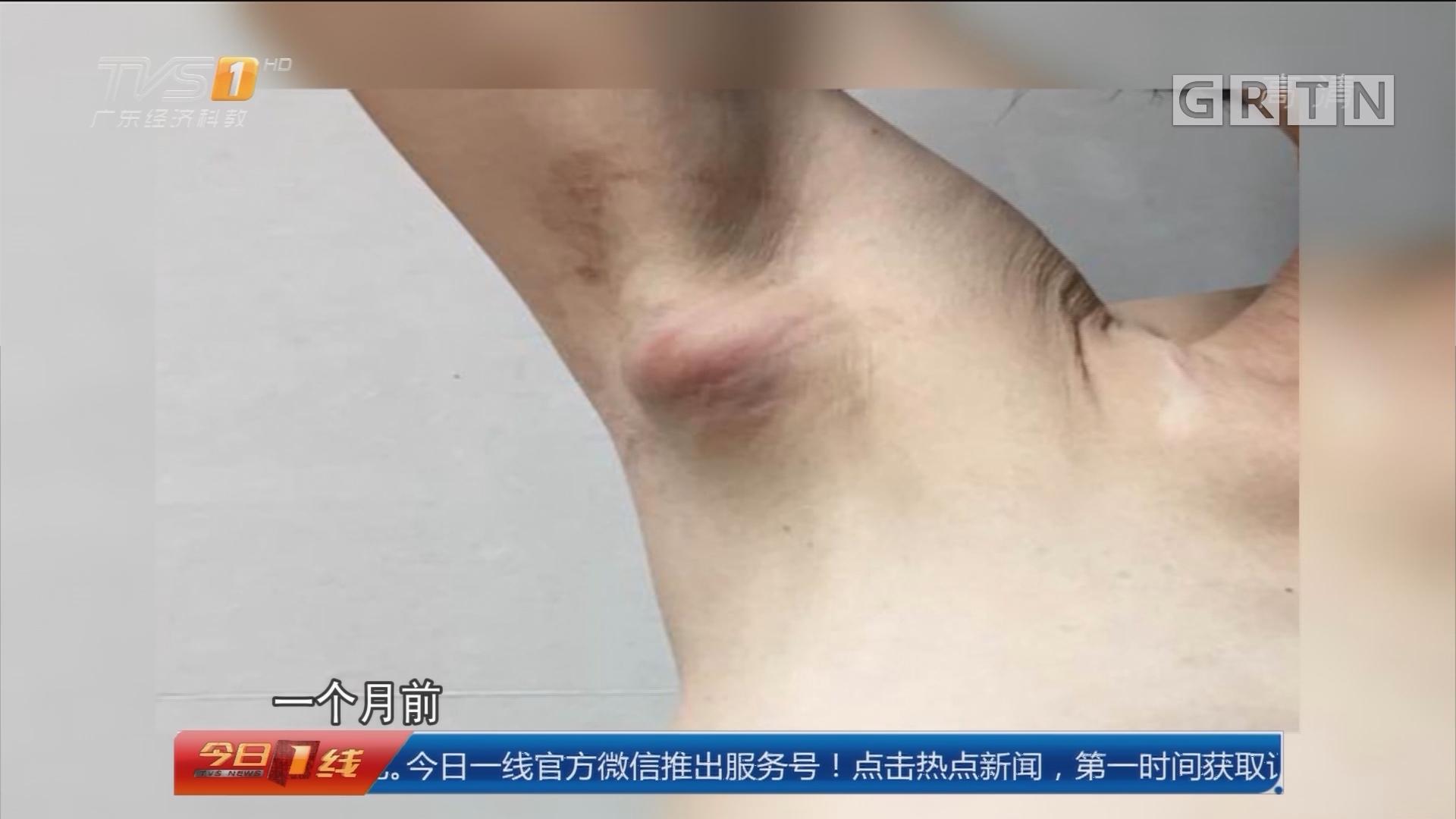 """广州:腋窝淋巴结肿大 并非""""癌症""""!"""