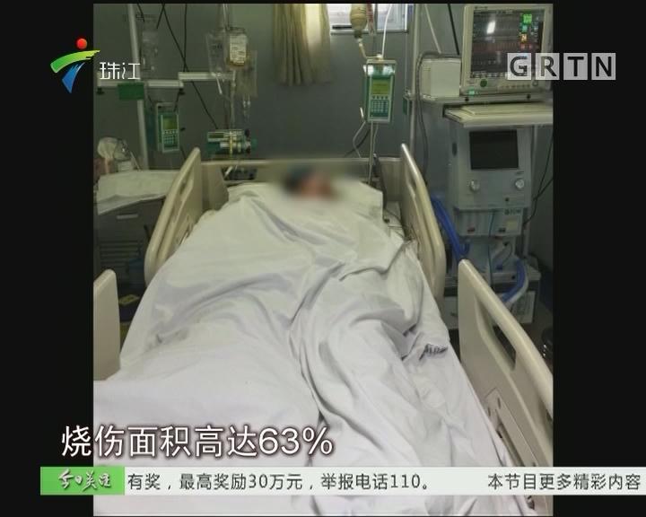 中山:24岁山东女孩重度烧伤 母亲赴粤途中车祸身亡