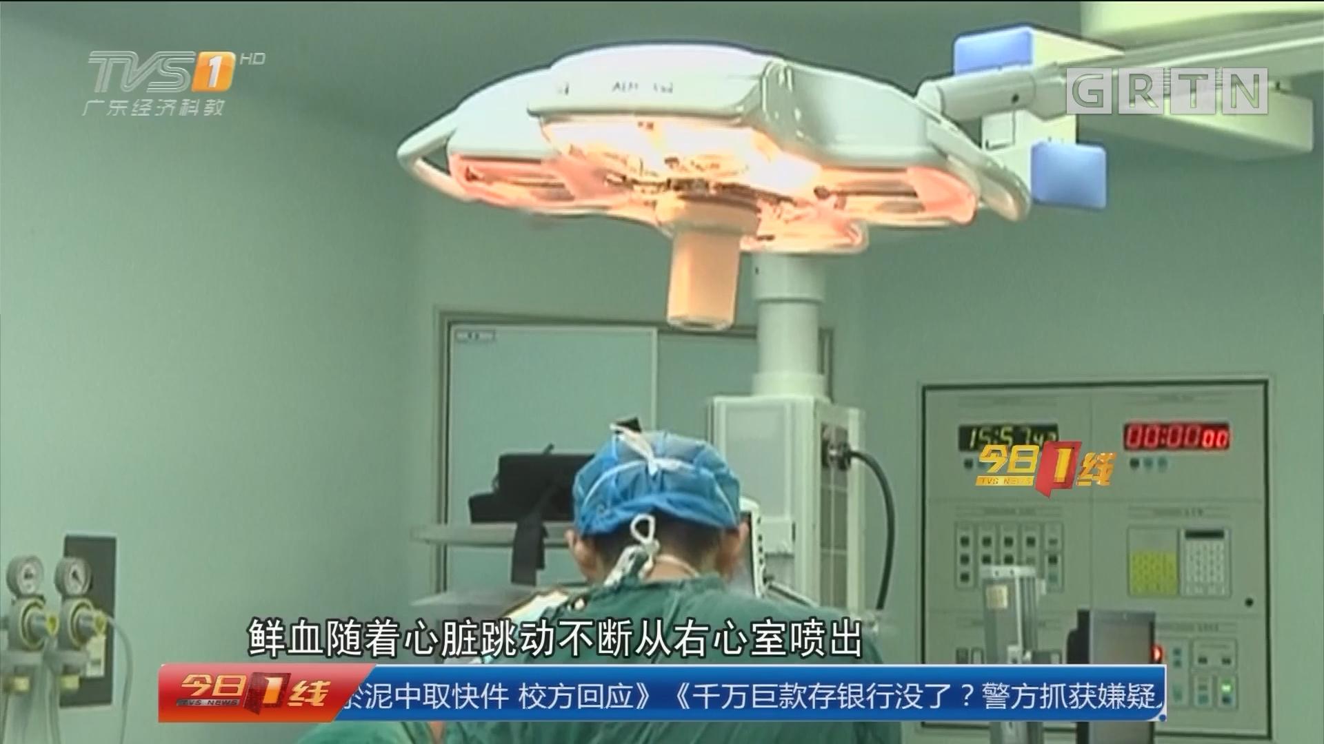 汕头:钢筋意外刺心 3小时手术救人