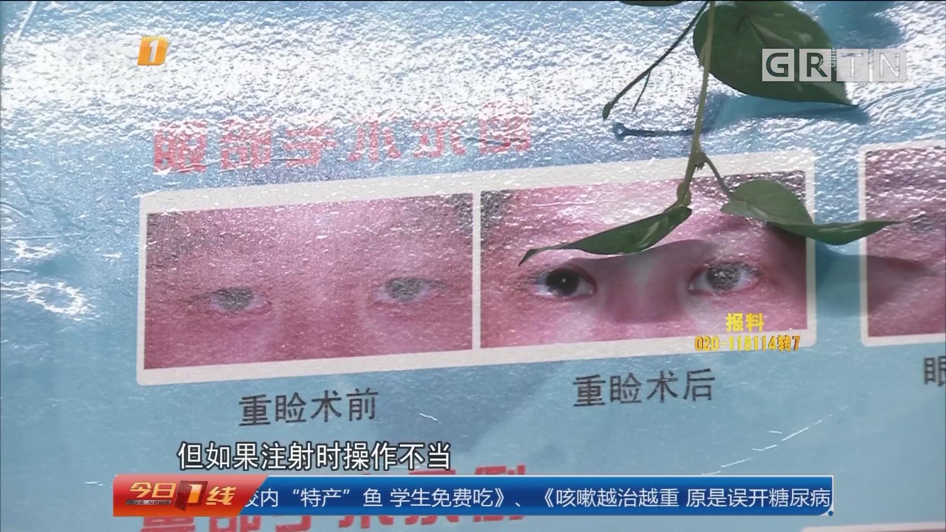 广州:打美容针终致失明? 注射美容需谨慎