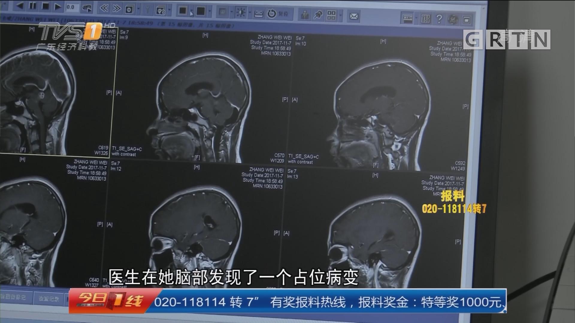 警惕寄生虫:少女频发癫痫 脑内病变竟在动