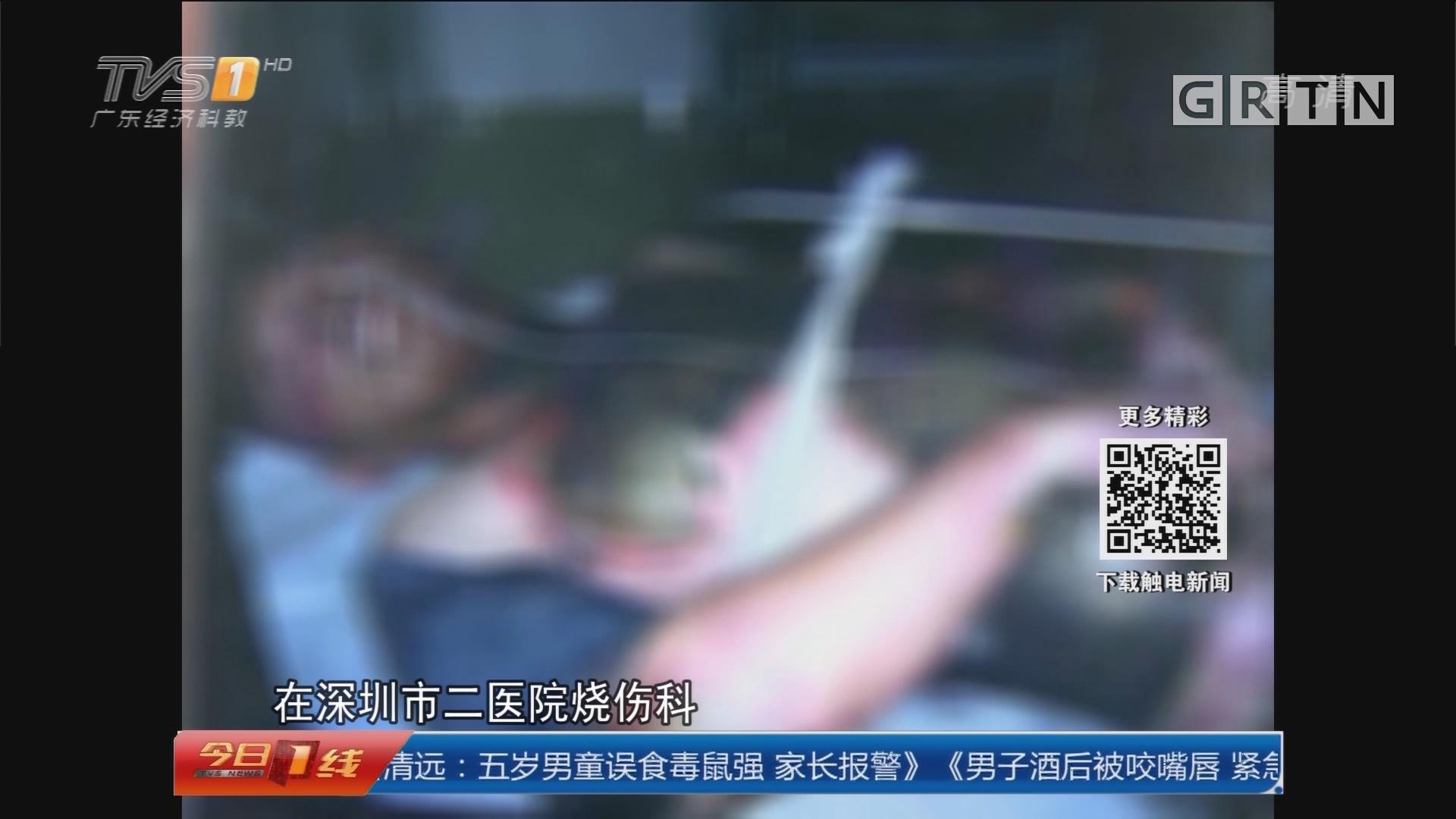 深圳:男子酒后被电截肢 配电房惹祸?
