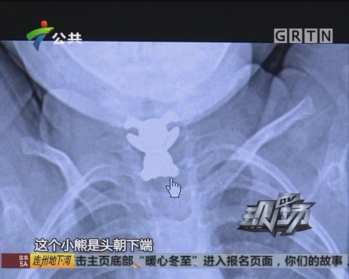 东莞:女童误吞拉链扣三天 脖子能吸磁铁