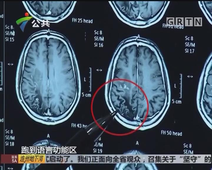 男子脑中8厘米活虫疯狂打洞 7年来癫痫反复发作