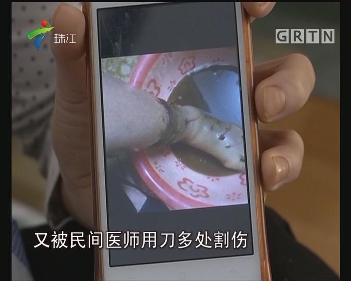肇庆:天气冷热反复 毒蛇伤人频发