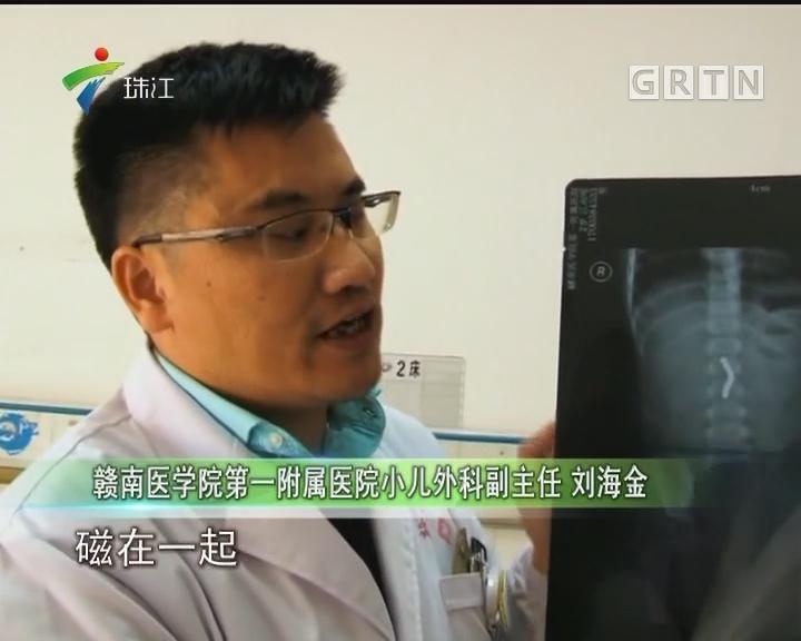 2岁男童吞下9颗磁力钢珠 致肠道穿孔