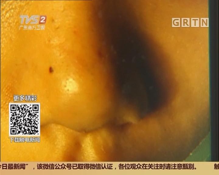 广州:惊险!10岁女孩挤黑头险出人命