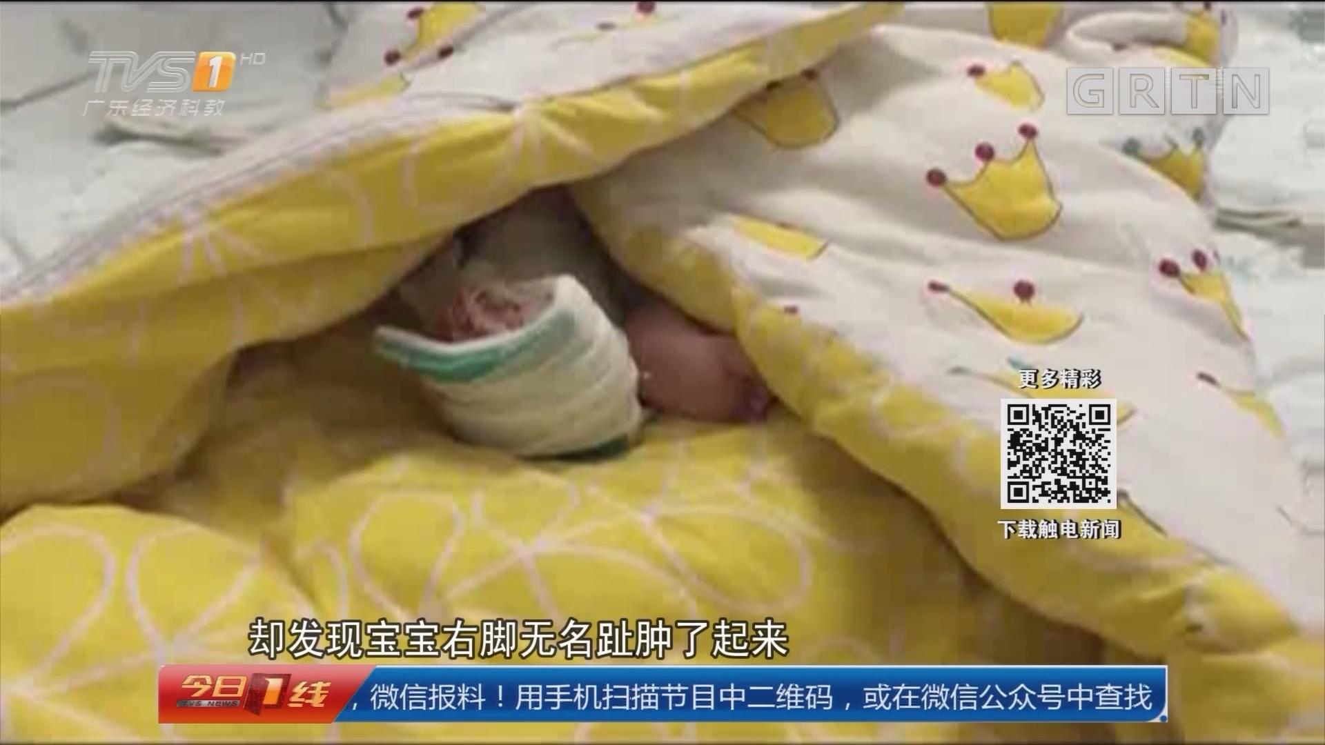 河南:宝宝脚趾被头发丝缠绕 险被截趾
