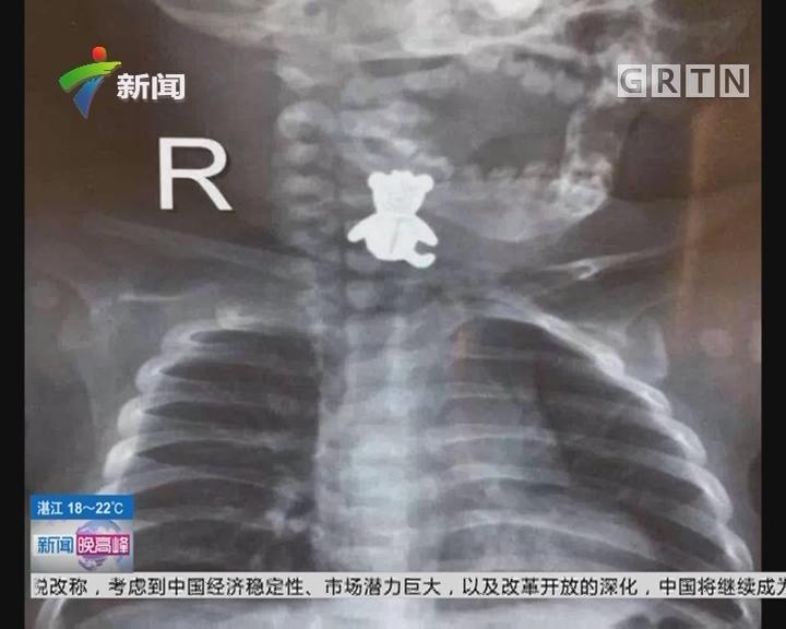 惠州:玩具纽扣卡在喉咙 四月龄婴儿险丧命