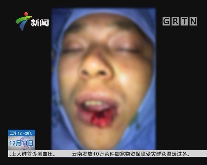 喝酒惹祸:惊!男子被朋友咬掉一块嘴唇