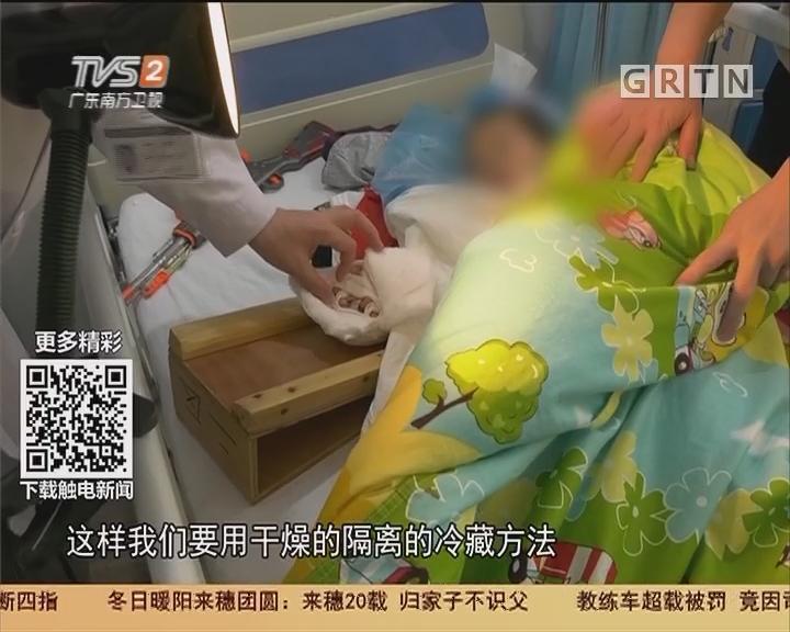 广州:摩托车链绞手 三岁男童断四指