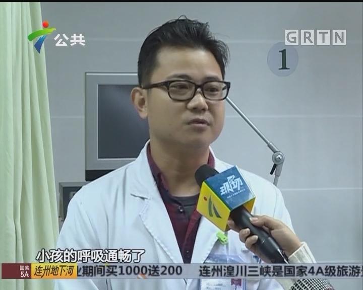 深圳:婴儿吃板栗卡喉 医生紧急抢救