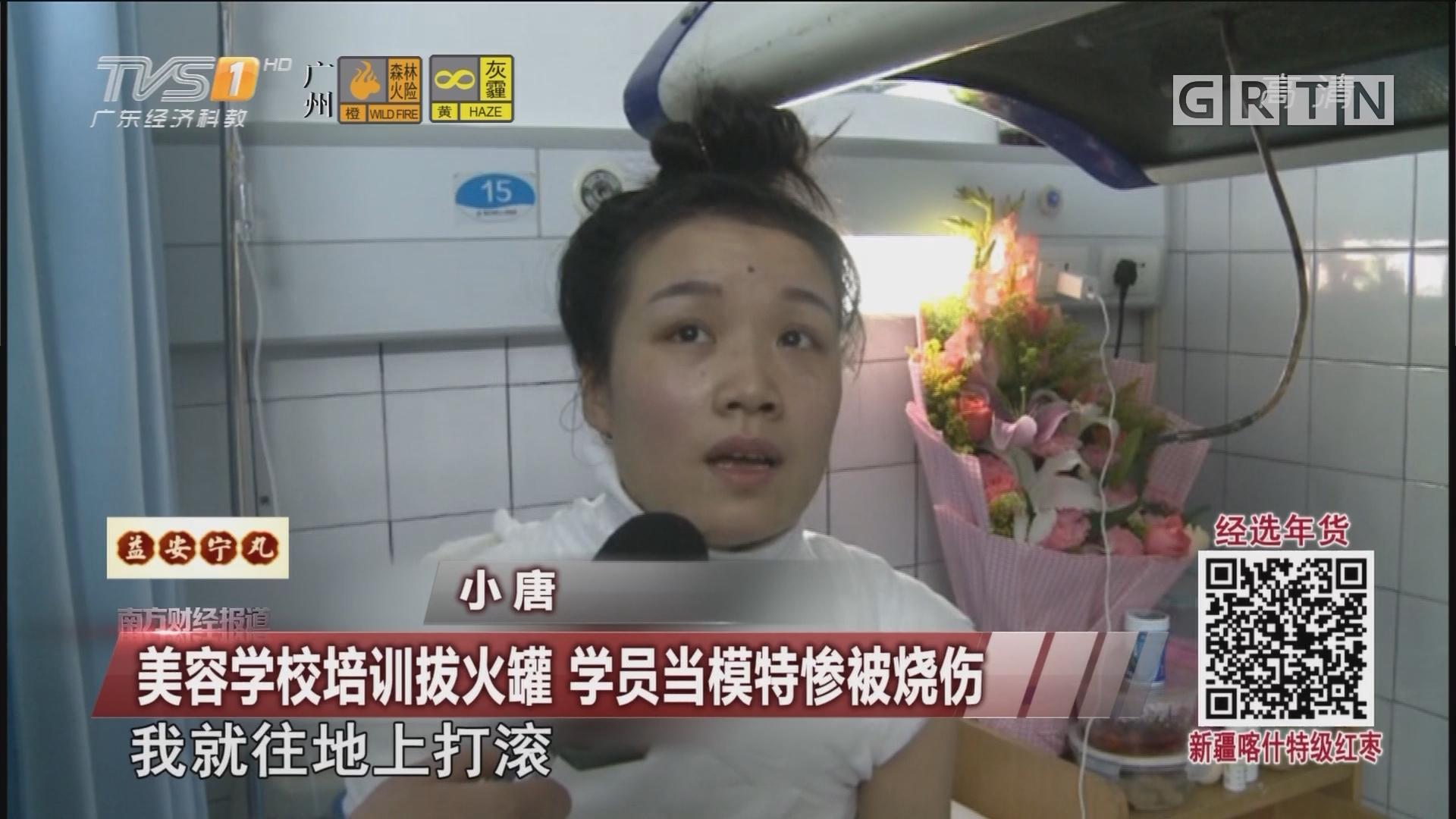 美容学校培训拔火罐 学员当模特惨被烧伤