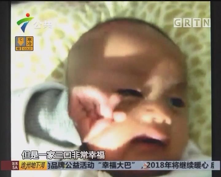 幼儿发烧后患上脓毒症 或将面临截肢