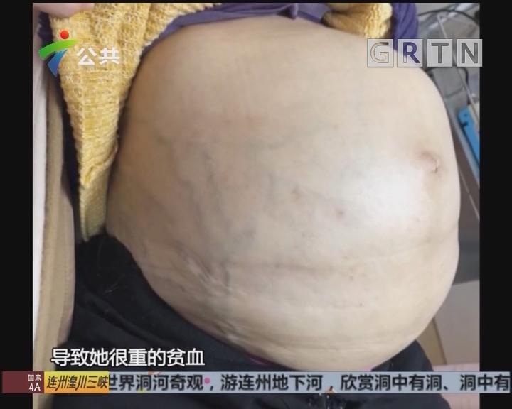"""珠海五旬女子""""生""""下20多斤巨型肿瘤"""