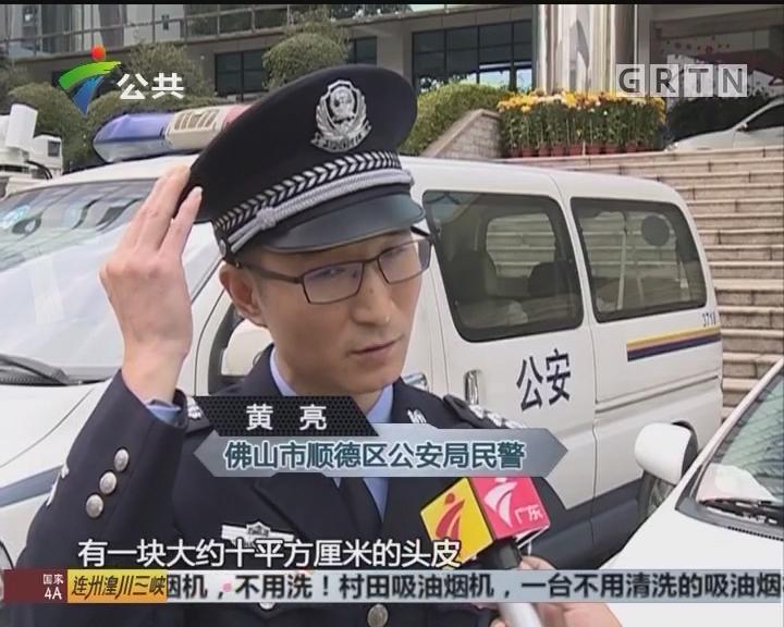 顺德:路遇老人受伤倒地 民警救助化险为夷
