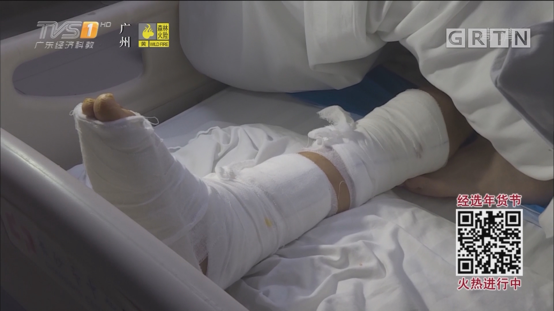 治疗脚踝扭伤 16岁男生感染超级细菌