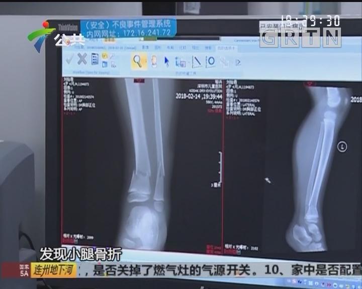 深圳:男童从单车摔下 导致小腿骨折