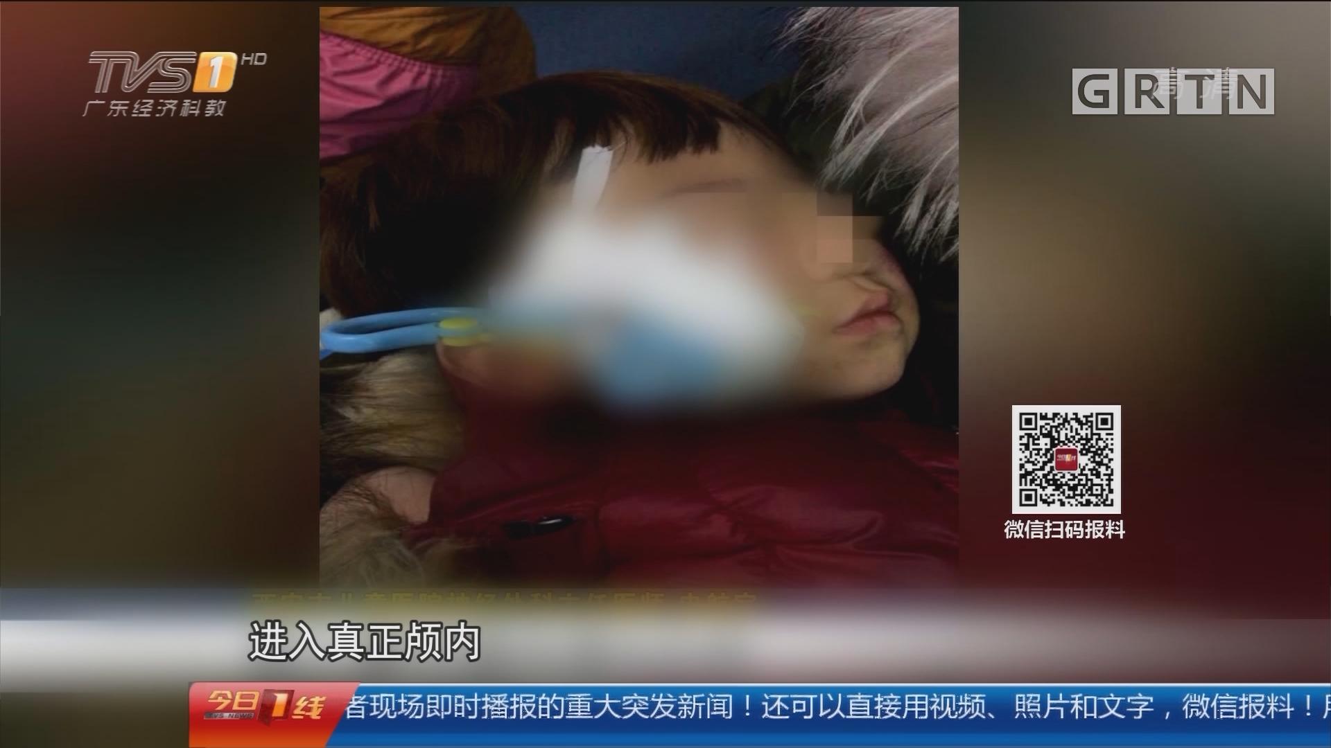关注儿童安全:男童摔倒 6厘米剪刀斜插脸部