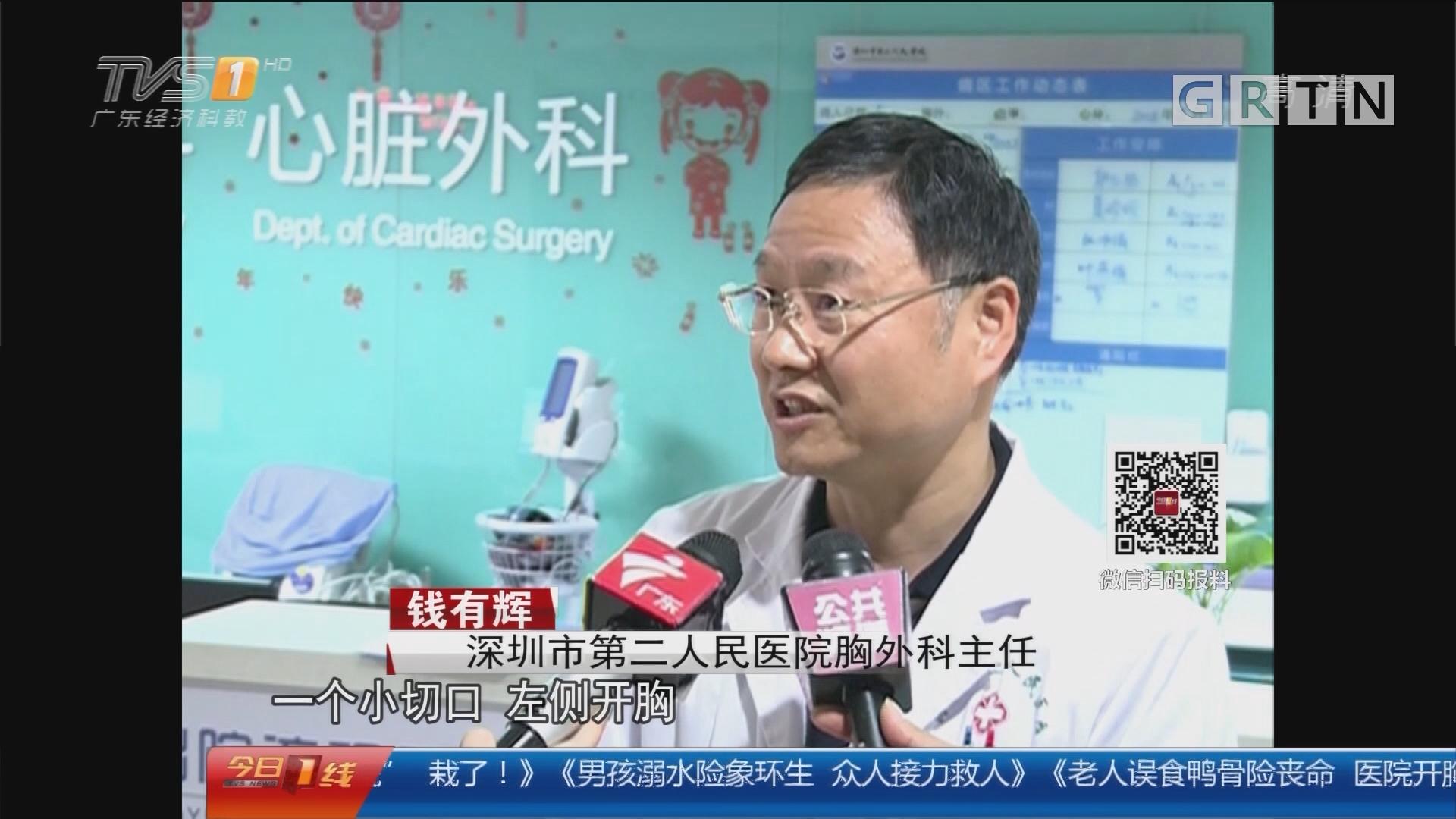 """深圳:老人误食鸭骨险丧命 医院开胸""""取骨"""""""