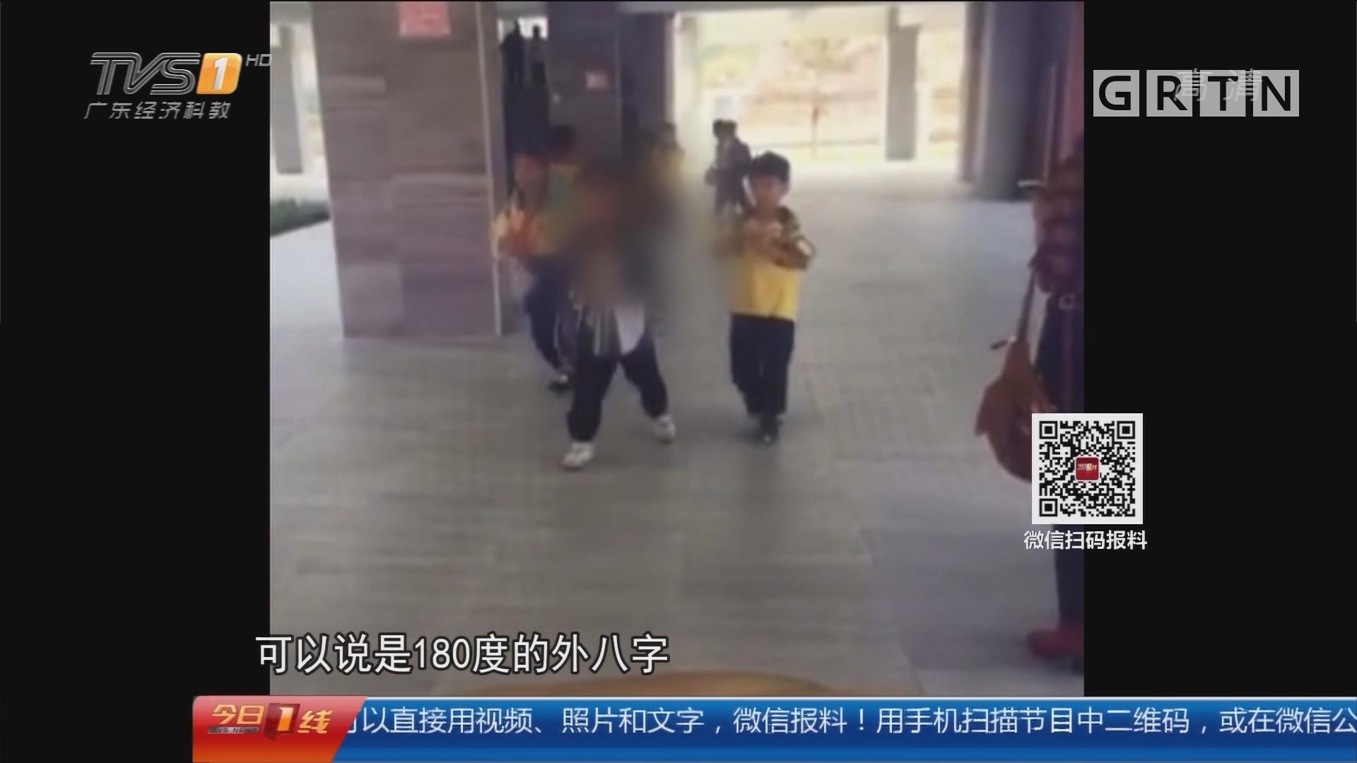 东莞:被同学踢下身 6岁男童睾丸受伤被摘除