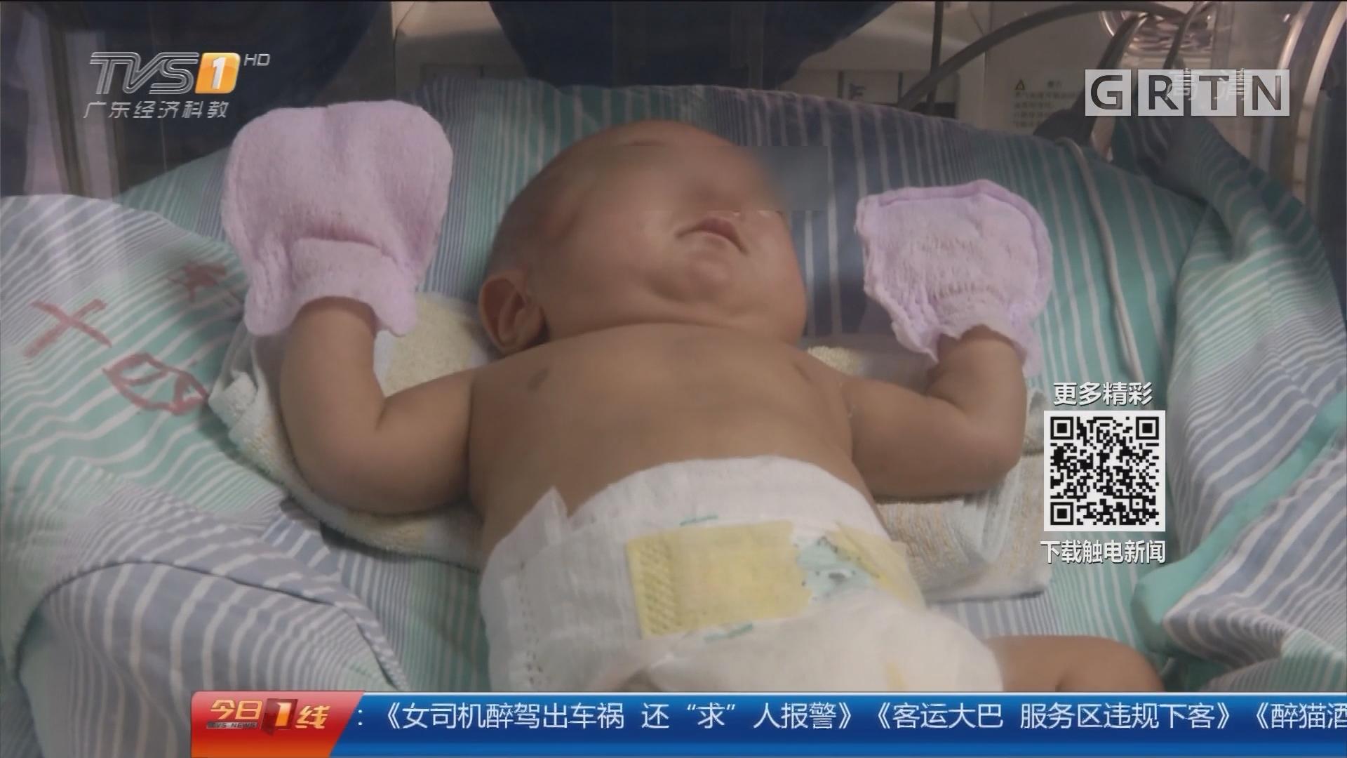 广州妇儿医疗中心:550克早产儿 才巴掌大