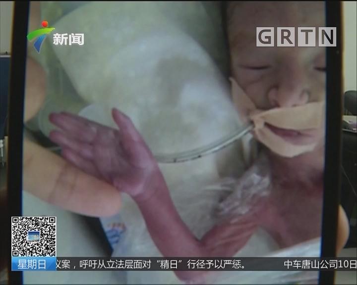 手掌婴儿:孕24周 婴儿体形只有手掌大小 救治成功