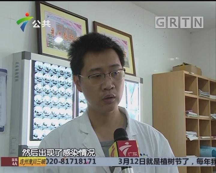 """东莞:五旬阿姨反复肚痛 医生取出数百""""石头"""""""
